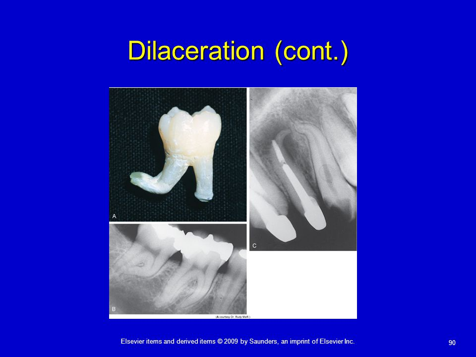 90 Elsevier items and derived items © 2009 by Saunders, an imprint of Elsevier Inc. Dilaceration (cont.)