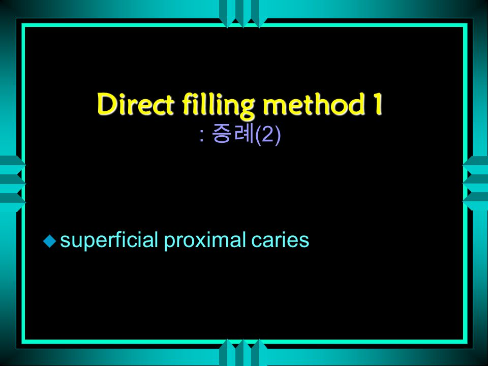Direct filling method 1 Direct filling method 1 : 증례 (2) u superficial proximal caries