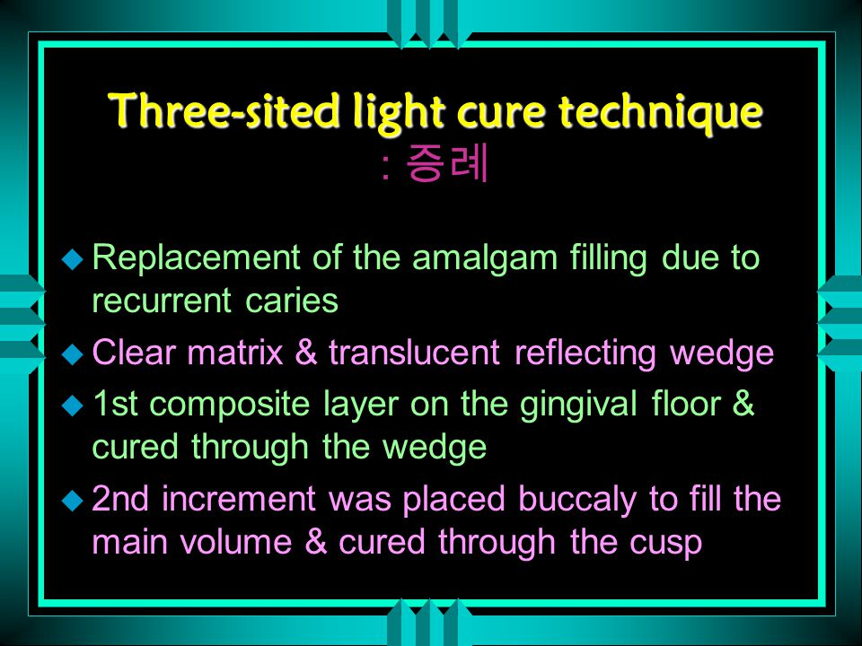 Three-sited light cure technique Three-sited light cure technique : 증례 u Replacement of the amalgam filling due to recurrent caries u Clear matrix & translucent reflecting wedge u 1st composite layer on the gingival floor & cured through the wedge u 2nd increment was placed buccaly to fill the main volume & cured through the cusp