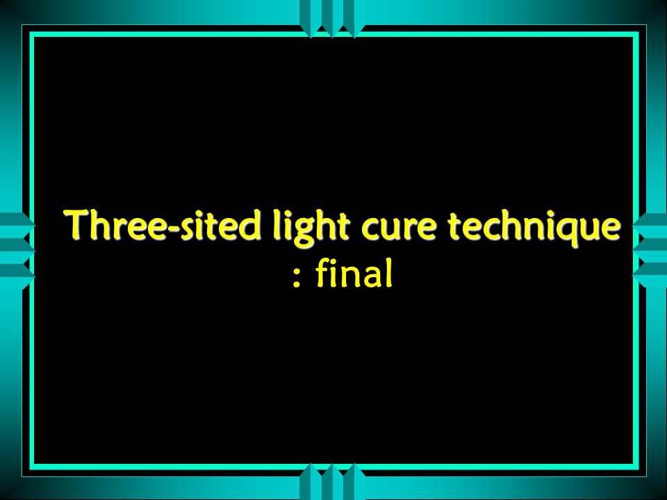 Three-sited light cure technique Three-sited light cure technique : final