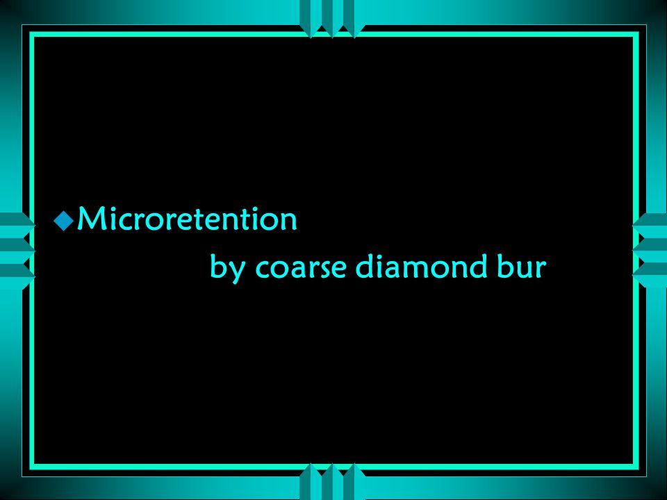 u Microretention by coarse diamond bur