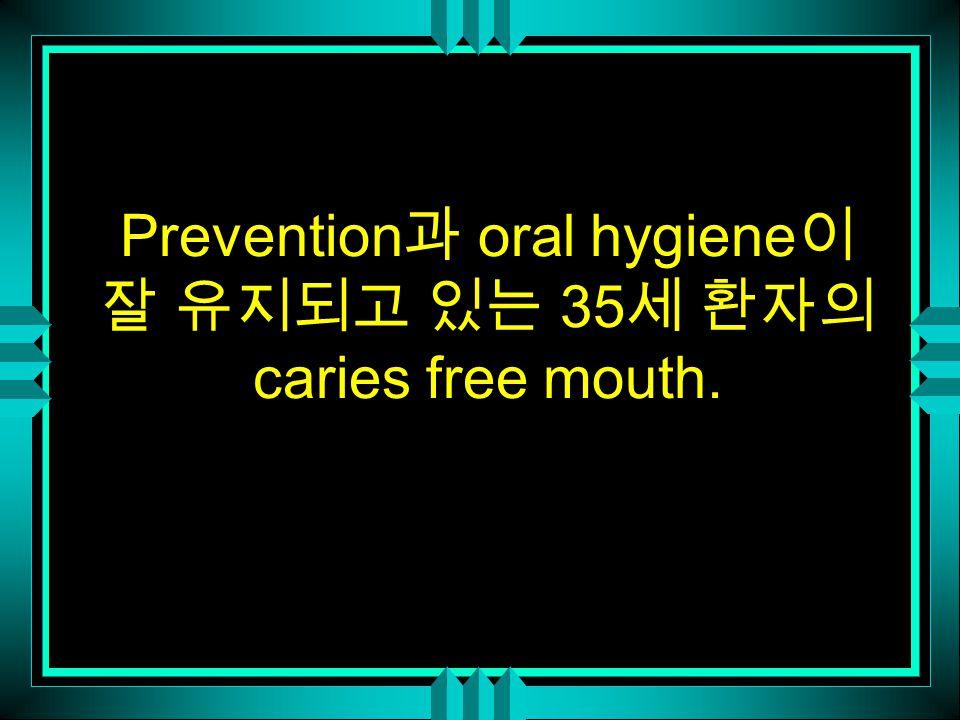 Prevention 과 oral hygiene 이 잘 유지되고 있는 35 세 환자의 caries free mouth.