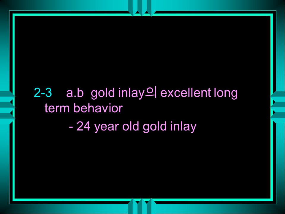 2-3 a.b gold inlay 의 excellent long term behavior - 24 year old gold inlay