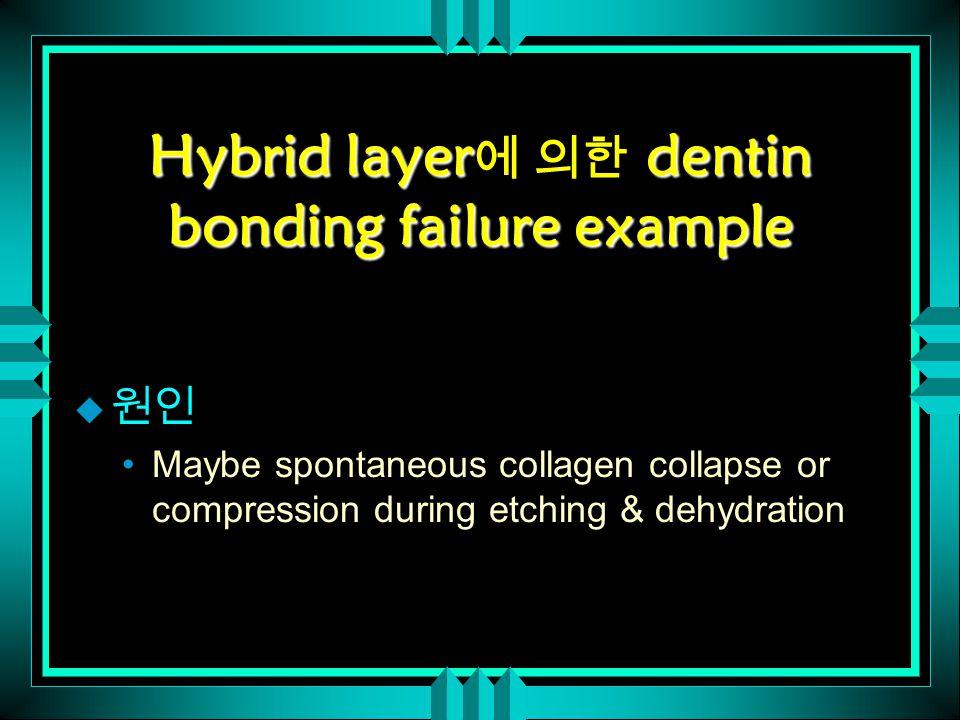 Hybrid layerdentin bonding failure example Hybrid layer 에 의한 dentin bonding failure example u 원인 Maybe spontaneous collagen collapse or compression du