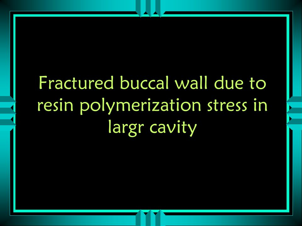 Fractured buccal wall due to resin polymerization stress in largr cavity
