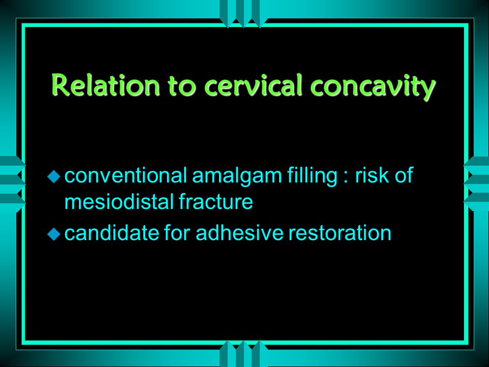 Relation to cervical concavity u conventional amalgam filling : risk of mesiodistal fracture u candidate for adhesive restoration