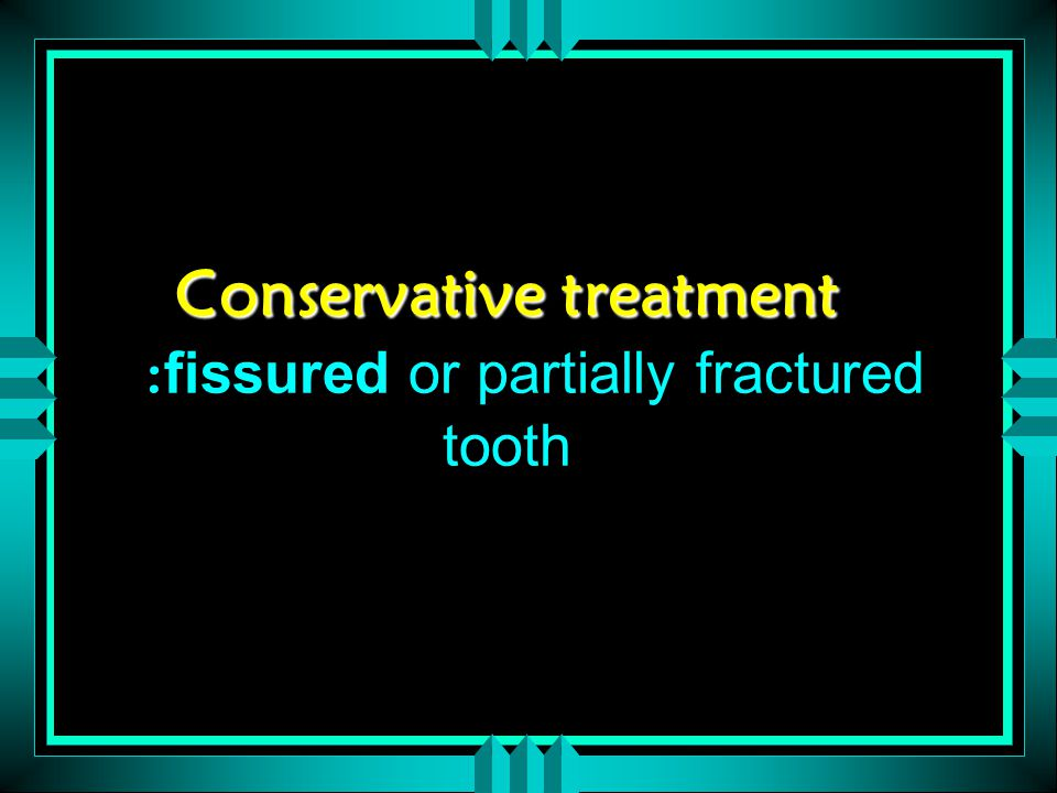 Conservative treatment Conservative treatment : fissured or partially fractured tooth