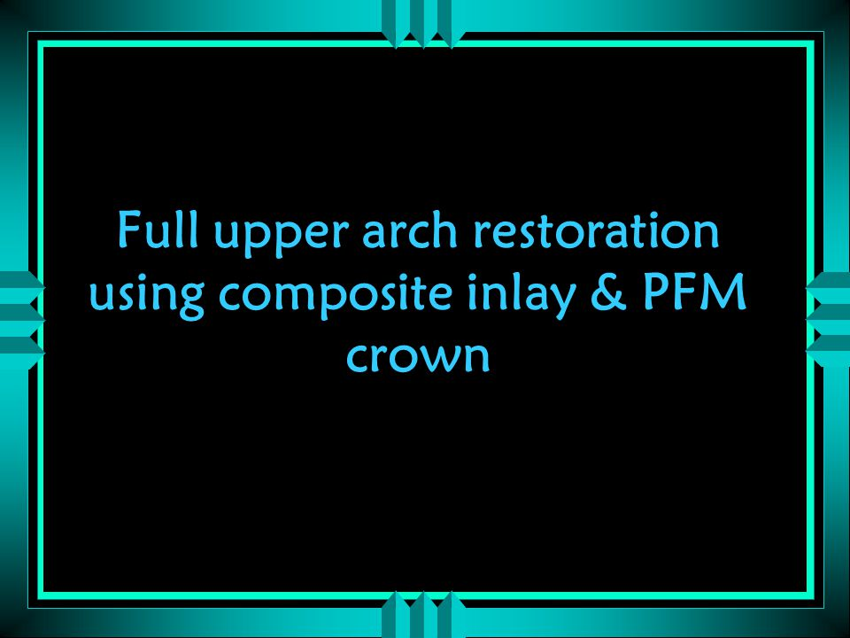 Full upper arch restoration using composite inlay & PFM crown