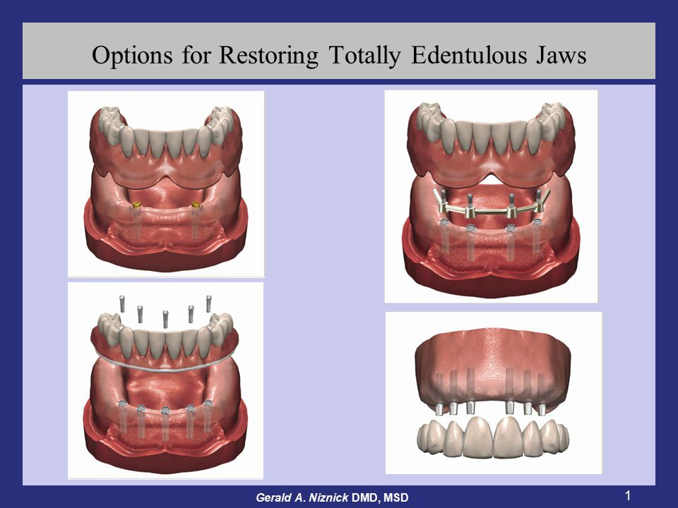 Gerald A. Niznick DMD, MSD 1 Options for Restoring Totally Edentulous Jaws