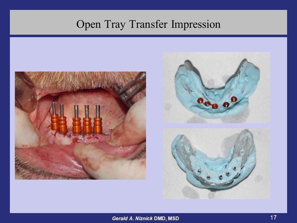 Gerald A. Niznick DMD, MSD 17 Open Tray Transfer Impression