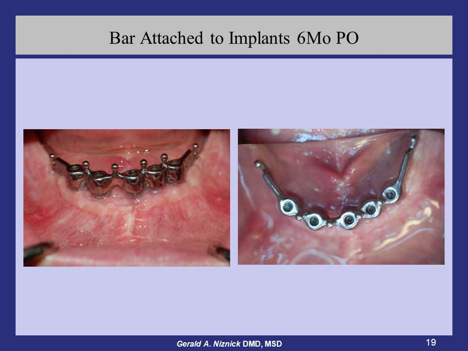 Gerald A. Niznick DMD, MSD 19 Bar Attached to Implants 6Mo PO
