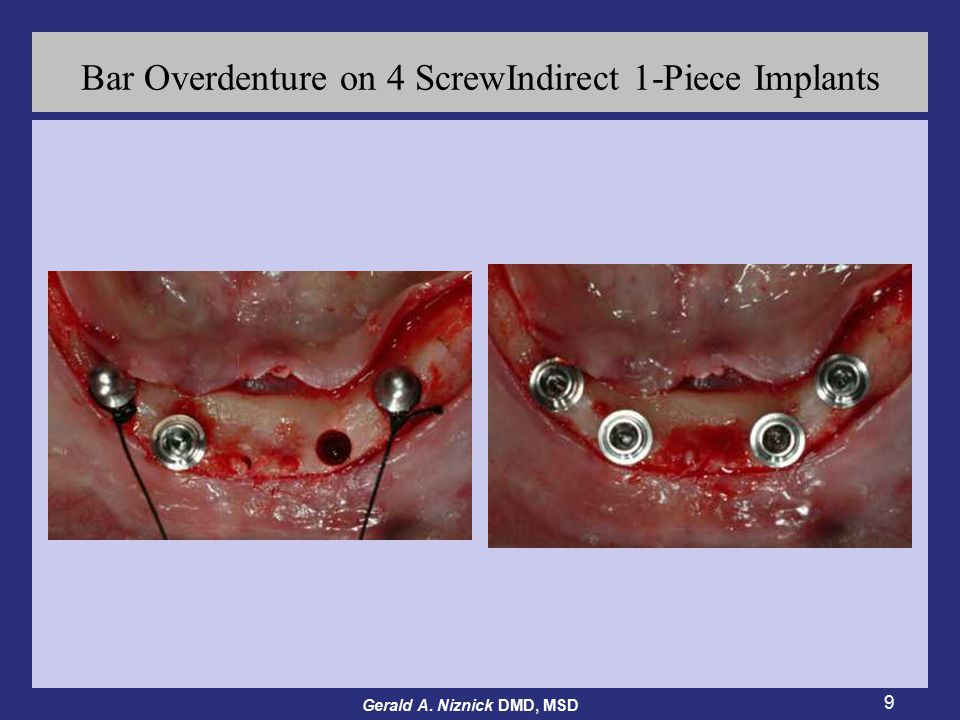 Gerald A. Niznick DMD, MSD 9 Bar Overdenture on 4 ScrewIndirect 1-Piece Implants