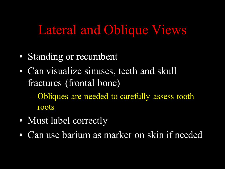 Lateral and Oblique Views Standing or recumbent Can visualize sinuses, teeth and skull fractures (frontal bone) –Obliques are needed to carefully asse