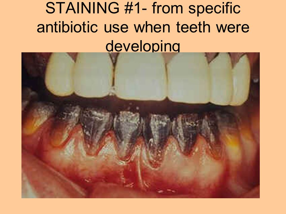 STAINING #1- from specific antibiotic use when teeth were developing