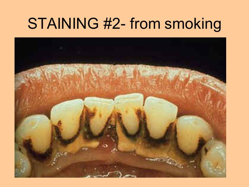 STAINING #2- from smoking
