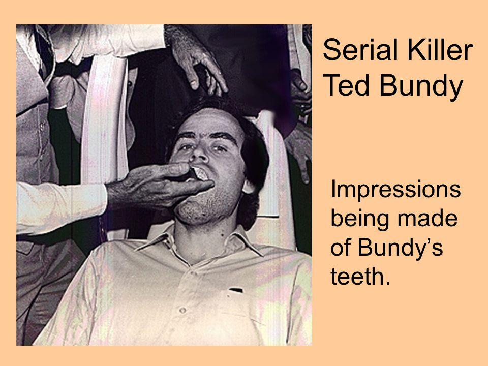 Serial Killer Ted Bundy Impressions being made of Bundy's teeth.