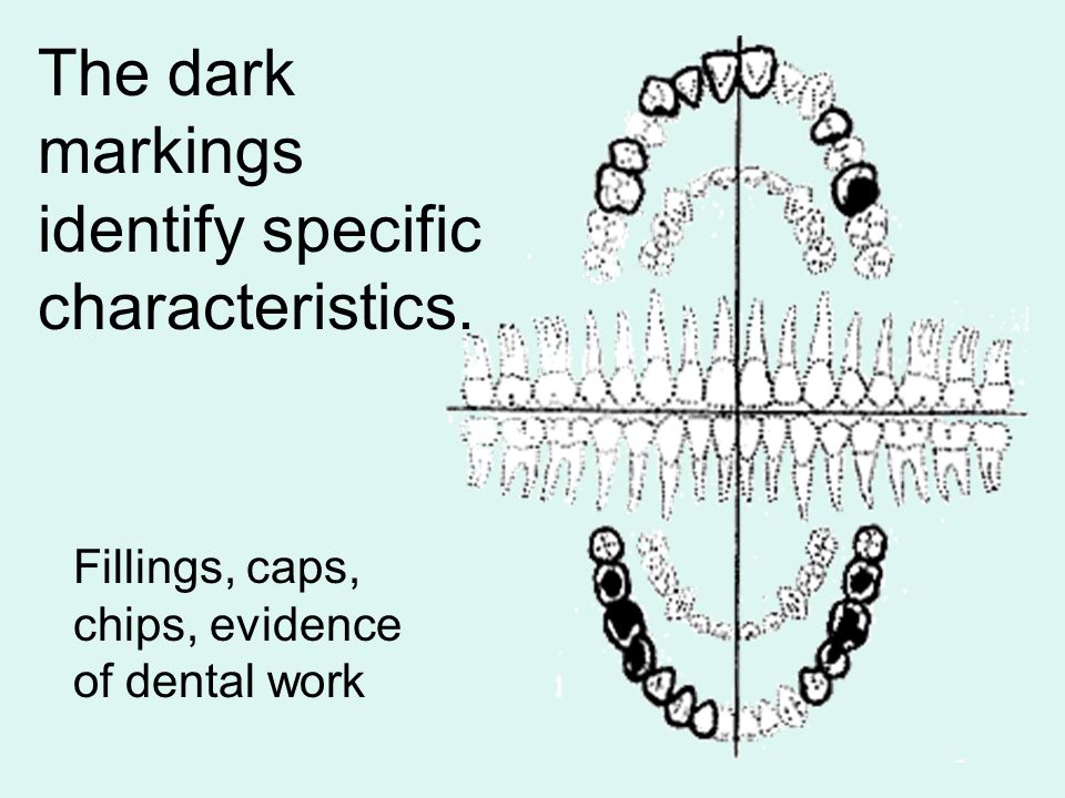 The dark markings identify specific characteristics. Fillings, caps, chips, evidence of dental work