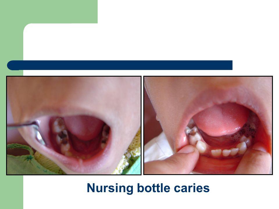 INTERCEPTIVE ORTHODONTICS Dept. of Orthodontics Yenepoya Dental College
