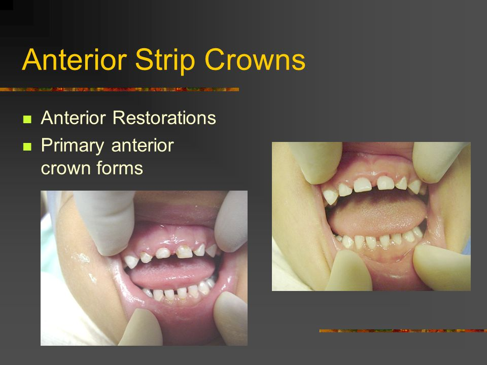 Anterior Strip Crowns Anterior Restorations Primary anterior crown forms