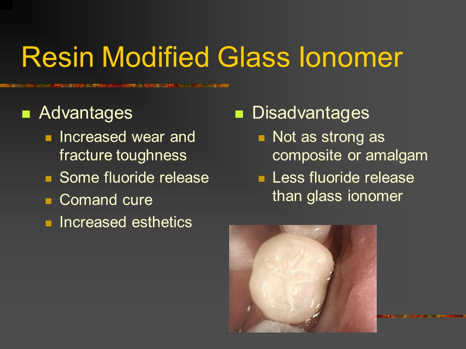 Resin Modified Glass Ionomer Advantages Increased wear and fracture toughness Some fluoride release Comand cure Increased esthetics Disadvantages Not as strong as composite or amalgam Less fluoride release than glass ionomer