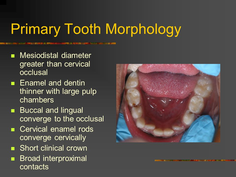 Primary Tooth Morphology Mesiodistal diameter greater than cervical occlusal Enamel and dentin thinner with large pulp chambers Buccal and lingual converge to the occlusal Cervical enamel rods converge cervically Short clinical crown Broad interproximal contacts