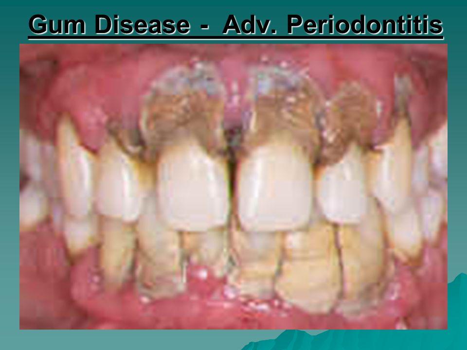 Gum Disease - Adv. Periodontitis