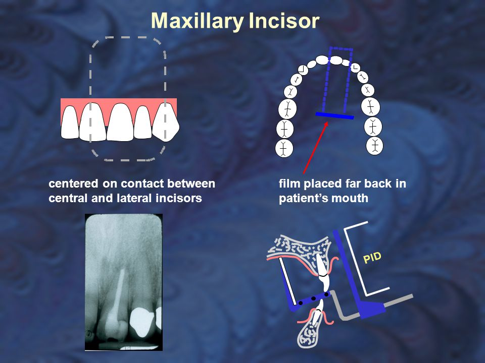 Maxillary Incisor centered on contact between central and lateral incisors film placed far back in patient's mouth