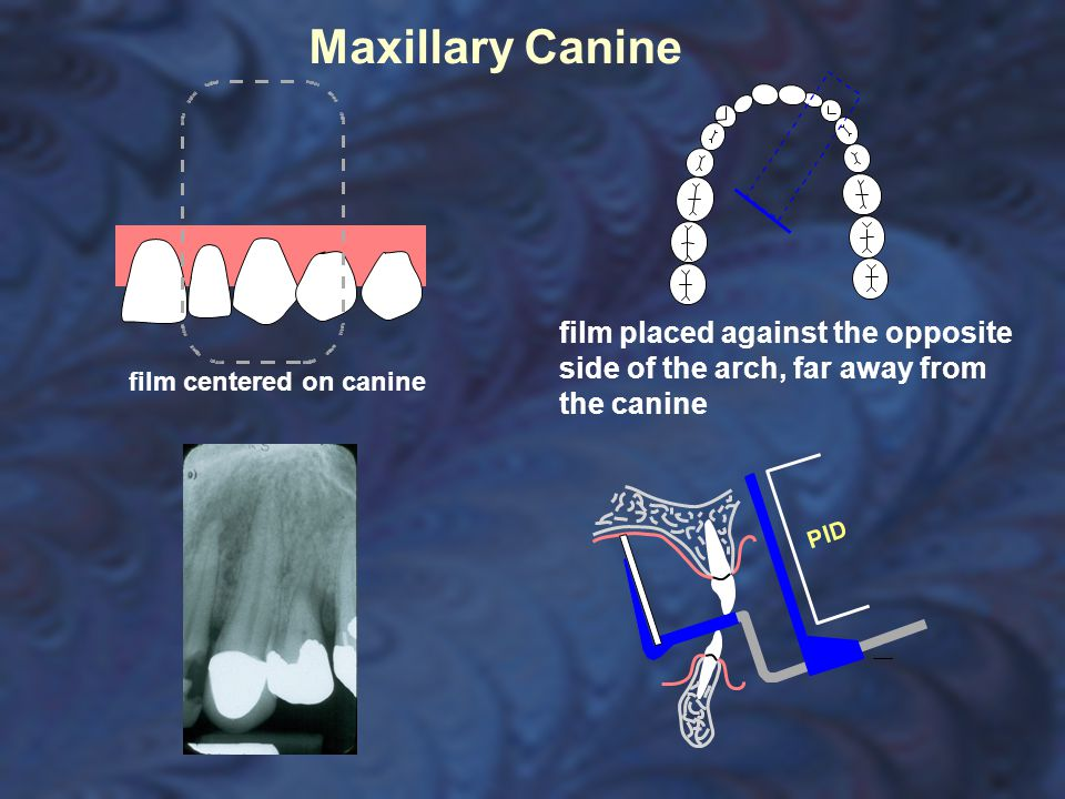 Maxillary Canine film centered on canine film placed against the opposite side of the arch, far away from the canine
