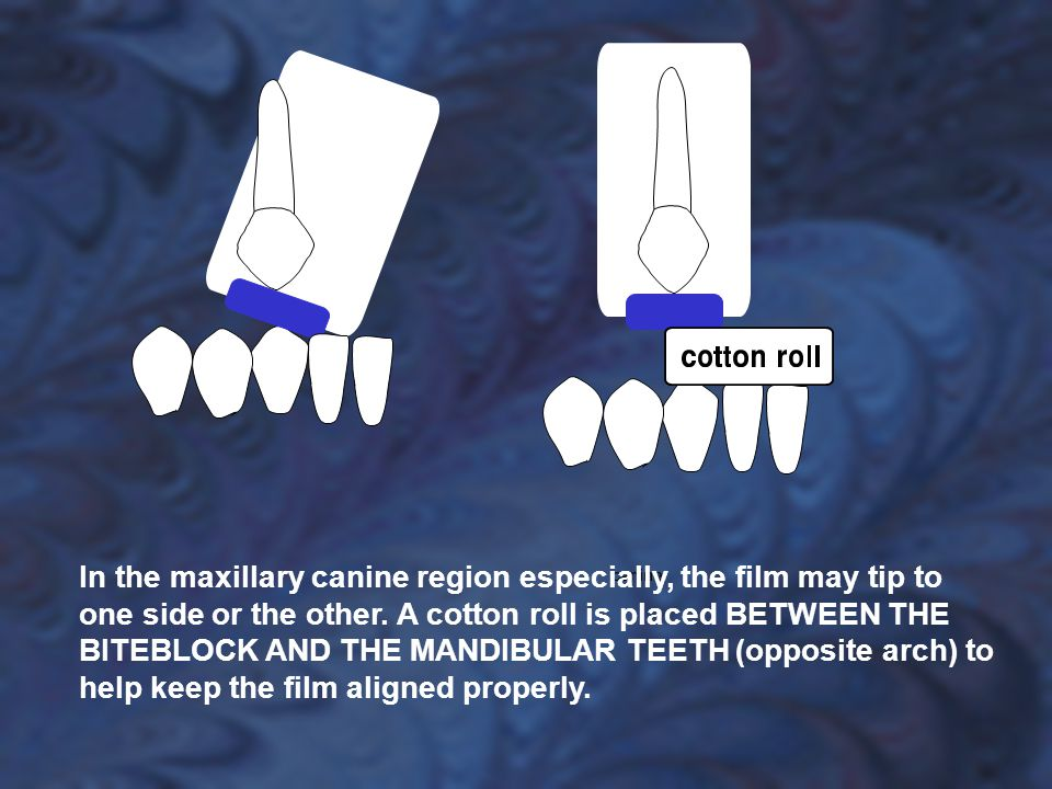 In the maxillary canine region especially, the film may tip to one side or the other. A cotton roll is placed BETWEEN THE BITEBLOCK AND THE MANDIBULAR