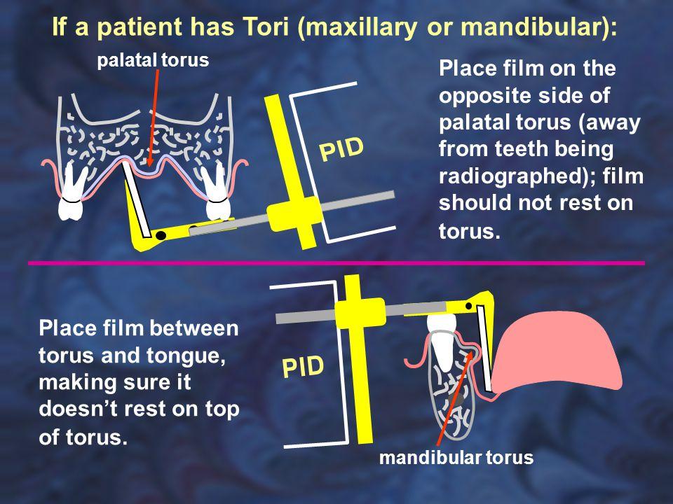 palatal torus mandibular torus If a patient has Tori (maxillary or mandibular): Place film on the opposite side of palatal torus (away from teeth bein