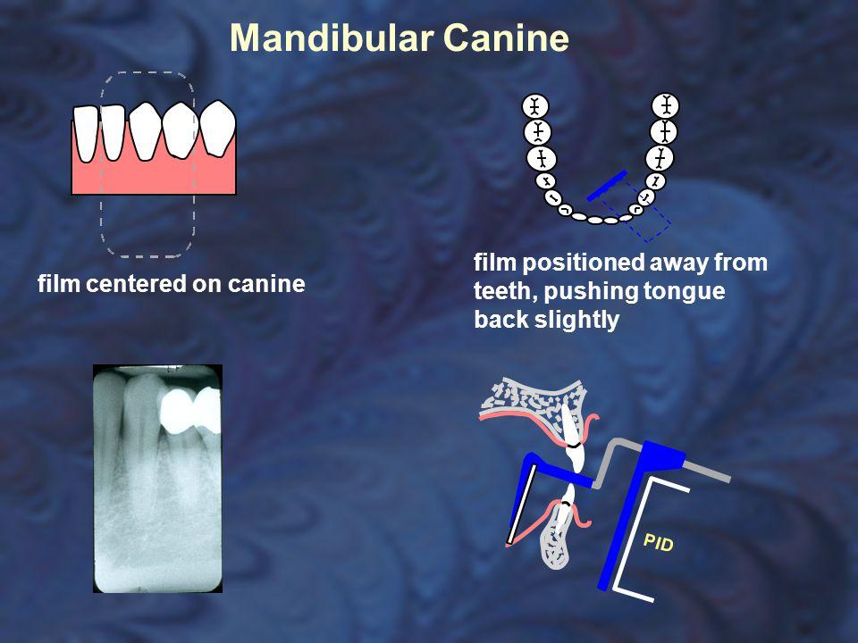 Mandibular Canine film centered on canine film positioned away from teeth, pushing tongue back slightly