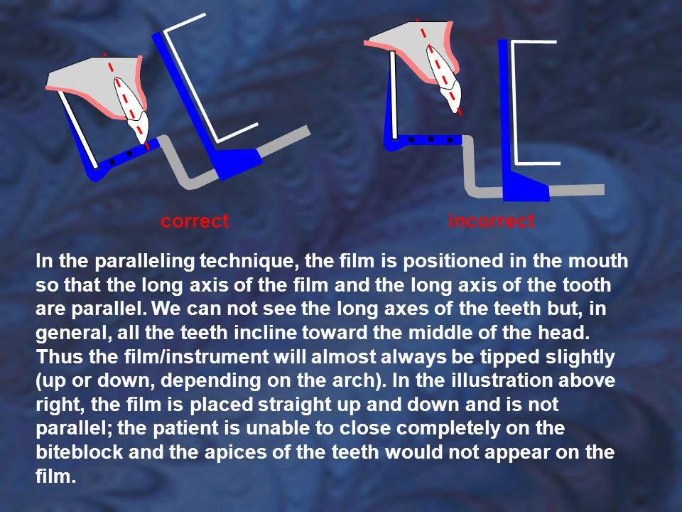 In the paralleling technique, the film is positioned in the mouth so that the long axis of the film and the long axis of the tooth are parallel. We ca