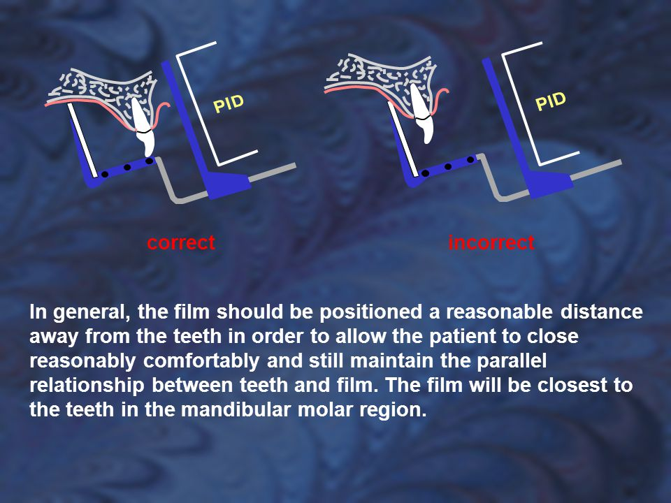 In general, the film should be positioned a reasonable distance away from the teeth in order to allow the patient to close reasonably comfortably and