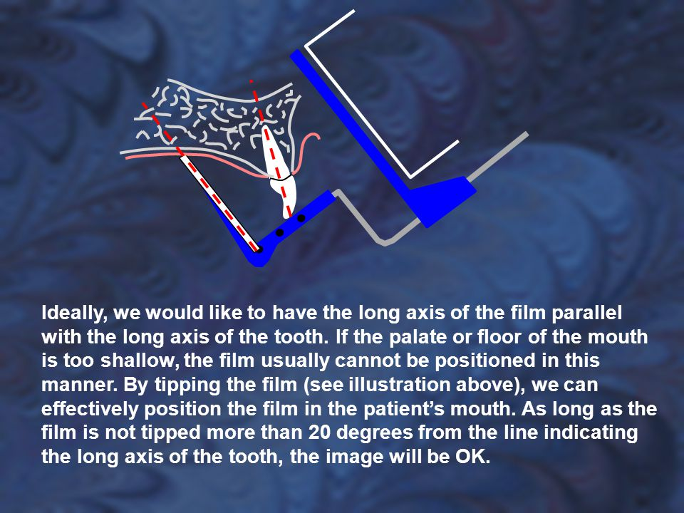 Ideally, we would like to have the long axis of the film parallel with the long axis of the tooth. If the palate or floor of the mouth is too shallow,