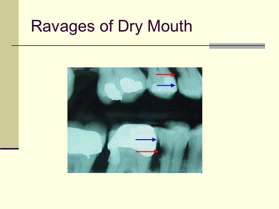 Oral Osteoporosis