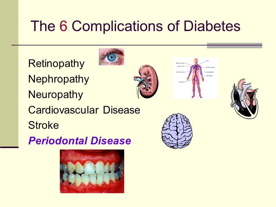 The 6 Complications of Diabetes Retinopathy Nephropathy Neuropathy Cardiovascular Disease Stroke Periodontal Disease