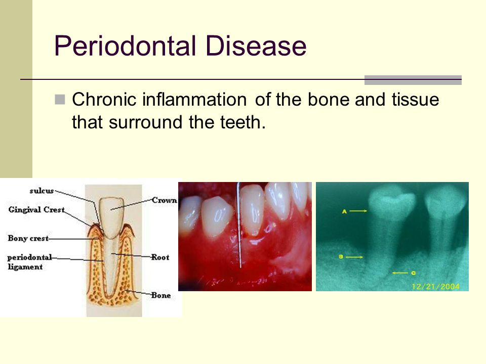 Periodontal Disease Chronic inflammation of the bone and tissue that surround the teeth.