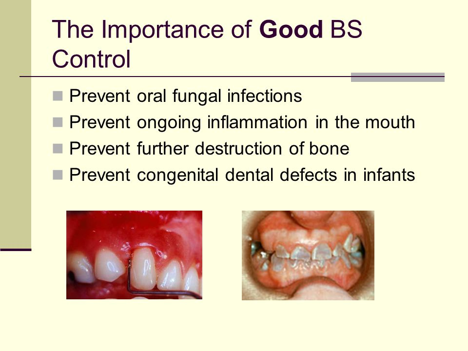 Periodontal Risk Factors  Poor oral hygiene  Inflammation  Long history of diabetes  Other diabetic complications  Poorly controlled diabetes  P