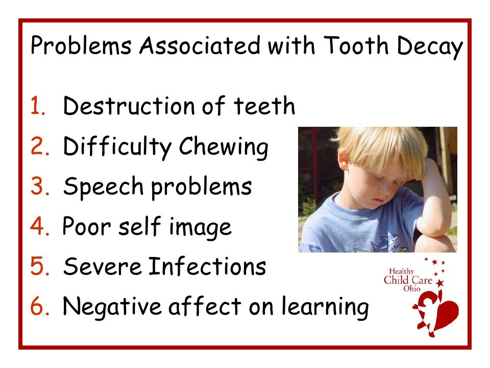 Problems Associated with Tooth Decay 1.Destruction of teeth 2.Difficulty Chewing 3.Speech problems 4.Poor self image 5.Severe Infections 6.Negative affect on learning