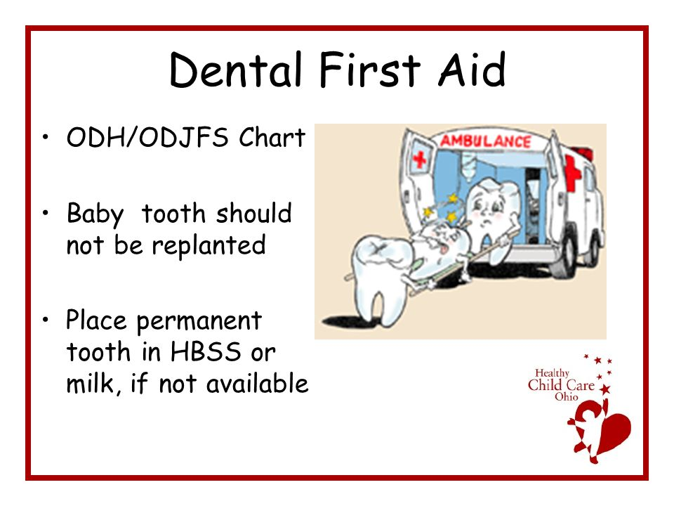 Dental First Aid ODH/ODJFS Chart Baby tooth should not be replanted Place permanent tooth in HBSS or milk, if not available