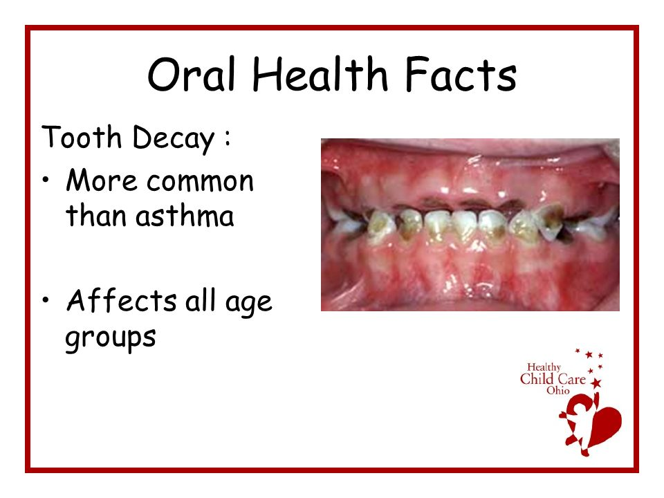 Oral Health Facts Tooth Decay : More common than asthma Affects all age groups