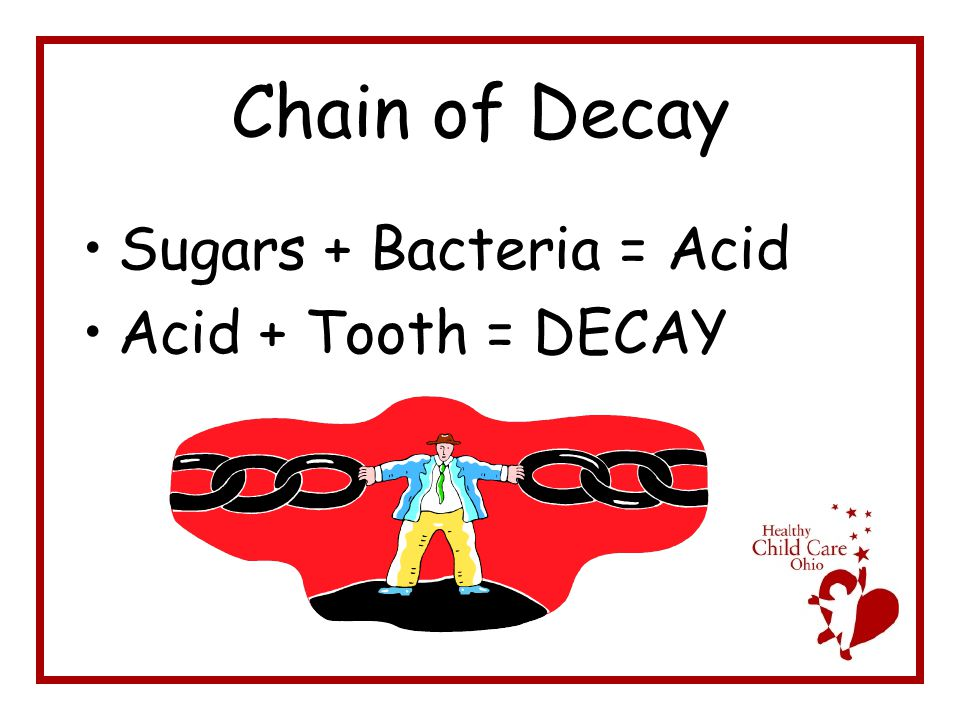 Chain of Decay Sugars + Bacteria = Acid Acid + Tooth = DECAY