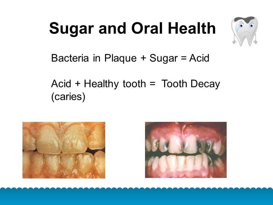 Sugar and Oral Health Bacteria in Plaque + Sugar = Acid Acid + Healthy tooth = Tooth Decay (caries)