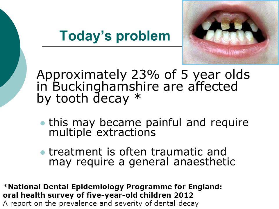 Sugar + bacteria = acid Acid + enamel = decay How tooth decay happens