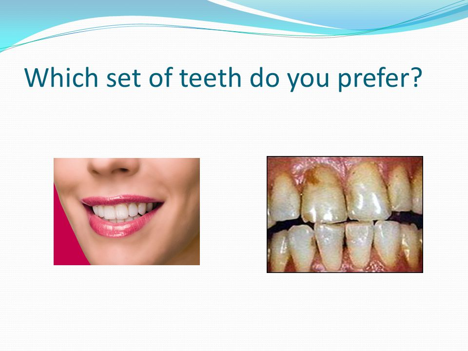 Which set of teeth do you prefer