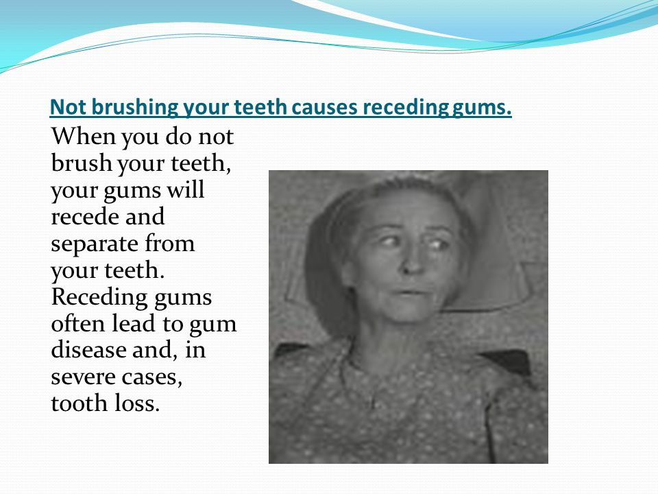 Not brushing your teeth causes receding gums.