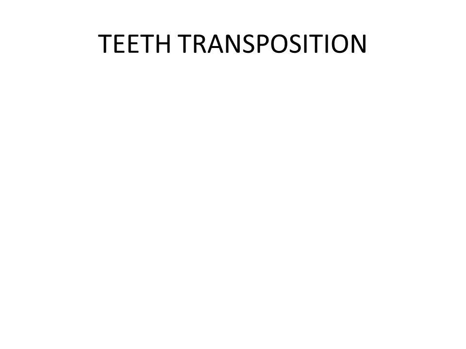 TEETH TRANSPOSITION