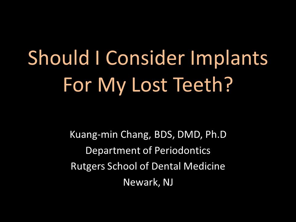 Should I Consider Implants For My Lost Teeth.