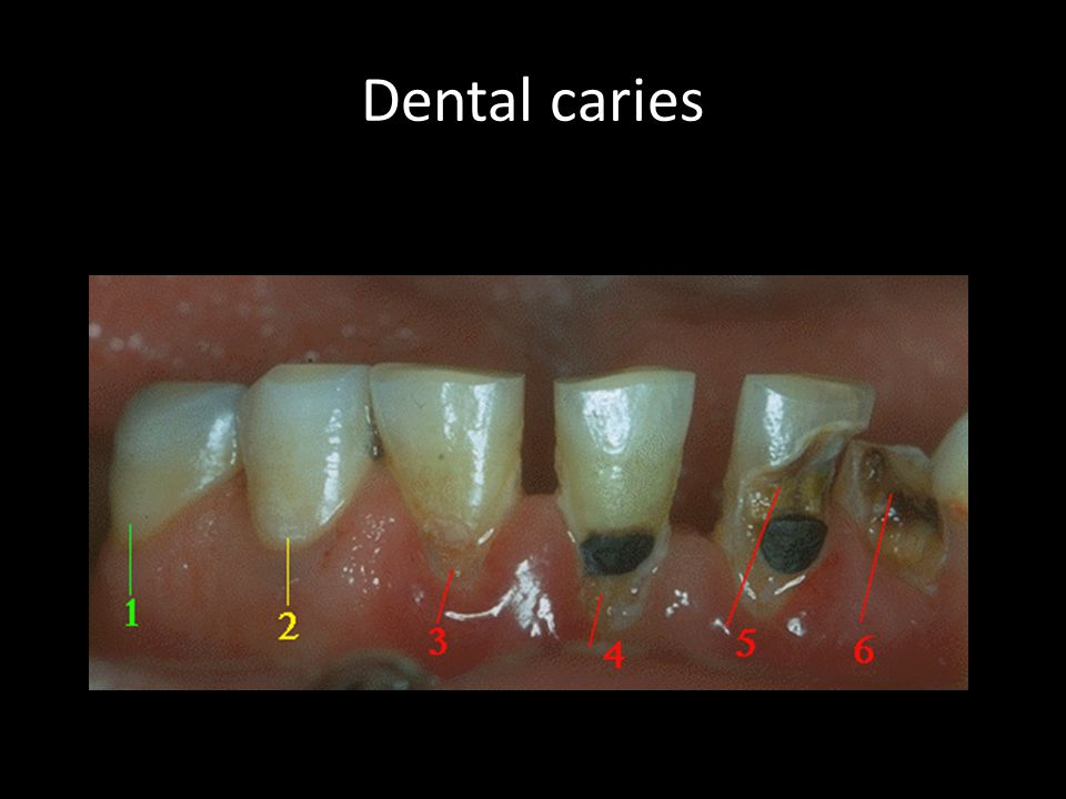 Dental esthetics is determined by teeth and gingiva