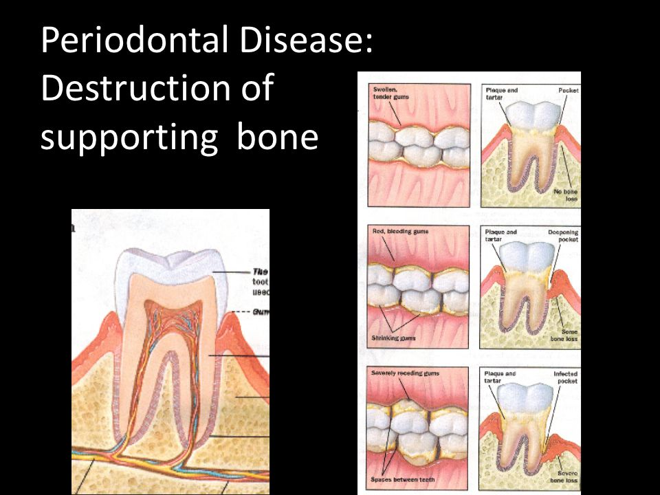 Periodontal Disease: Destruction of supporting bone